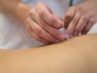 Beneficios de la acupuntura para aliviar la ansiedad y el estrés