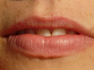 tratamiento del labio leporino